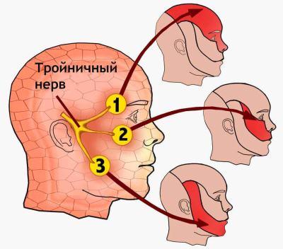 Невралгія трійчастого нерва: симптоми і лікування, причини захворювання