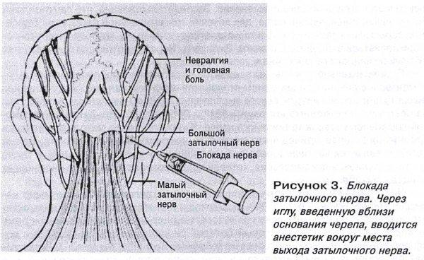 Невралгія потілічного нерва