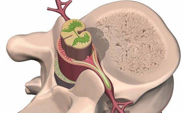 Невринома попереково крижового відділу хребта