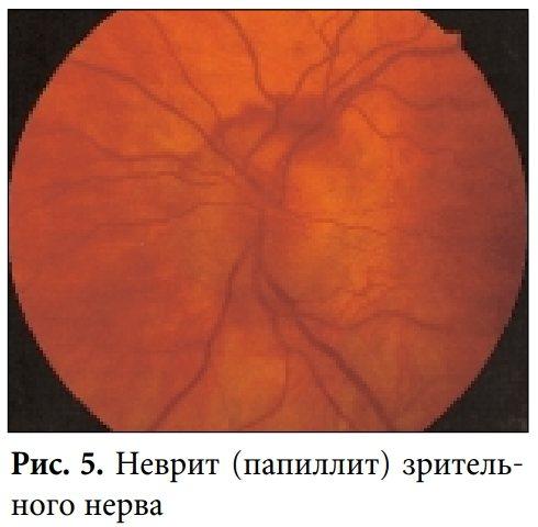 Неврит зорового нерва: фото
