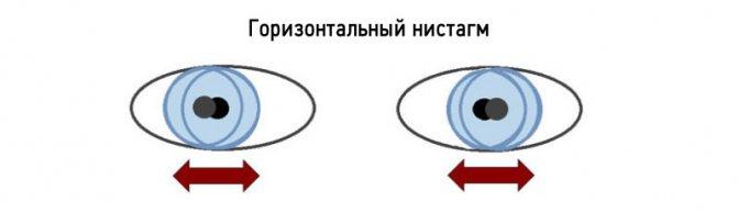 ністагм очей