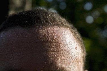 Нічна пітлівість при ВІЛ.  Лоб рясно вкрітій крапельками поту.