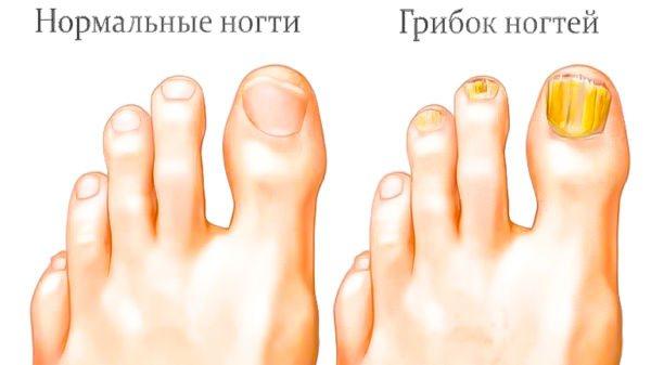 Нормальні нігті і грибок
