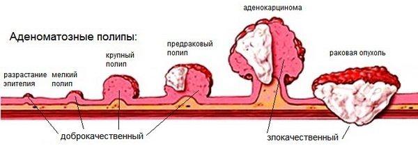 Новоутворення на шкірі: фото і опис на голові, руках, обличчі та тілі. Як лікувати доброякісні та злоякісні новоутворення