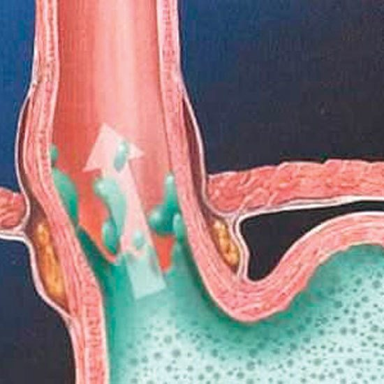 Нові типи препаратів в лікуванні гастроезофагеального рефлюксу
