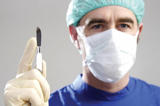 Чи потрібна операція при баланіте у чоловіків?