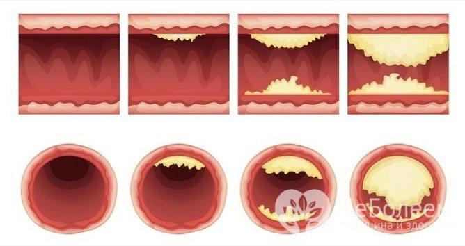 Облітеруючій атеросклероз - хронічній недуги, Який з часом прогресує