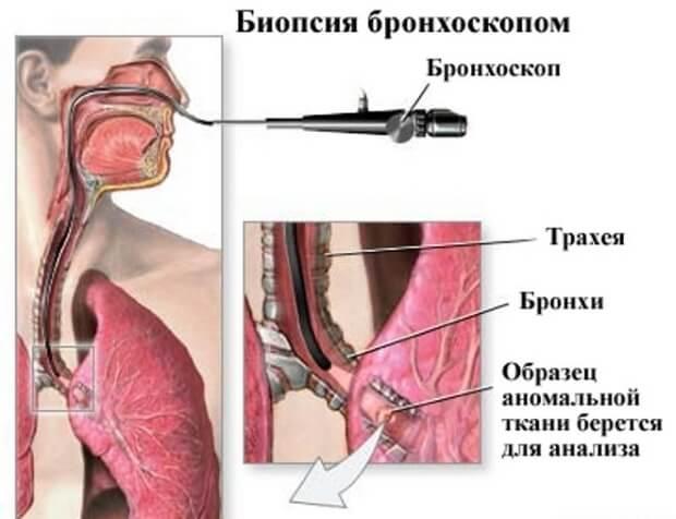 Зразок аномальної тканини