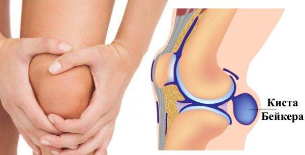 Освіта кісті Беккера під коліном: як лікуваті захворювання
