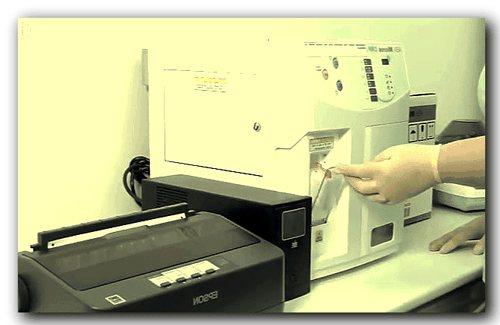 Загальний аналіз крові, розгорнутий, основні показники