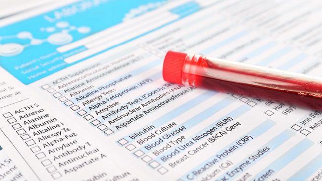 Загальний аналіз крови
