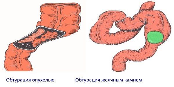 Обтурація жовчніх каменем