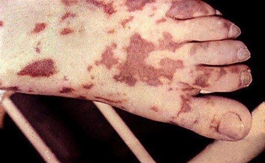 Осередок менінгококової інфекції
