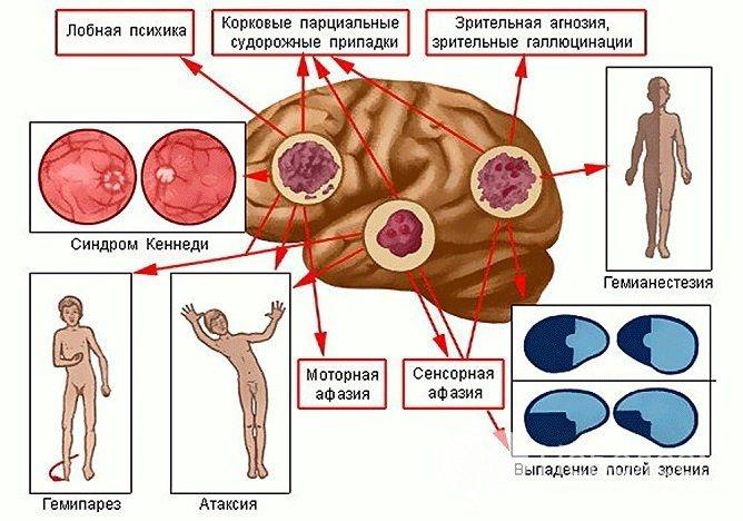 Осередкові Симптоми астроцитом