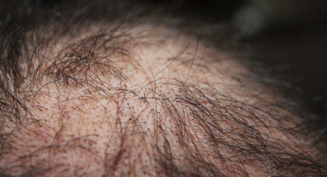 Дуже сильно віпадає волосся - що робити