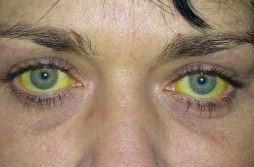 Один із симптомів гепатиту