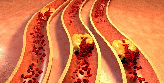 Оклюзія - закупорка судин і артерій