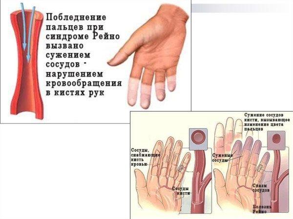 Оніміння пальців рук. Причини і лікування. Народні засоби, препарати в таблетках, мазі, процедури