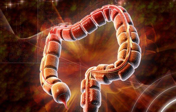 Онкологія кишечника і прямої кишки ознаки