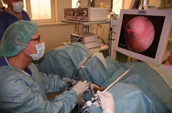 операційна цістоскопія
