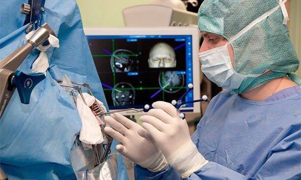 Операція на головному мозком