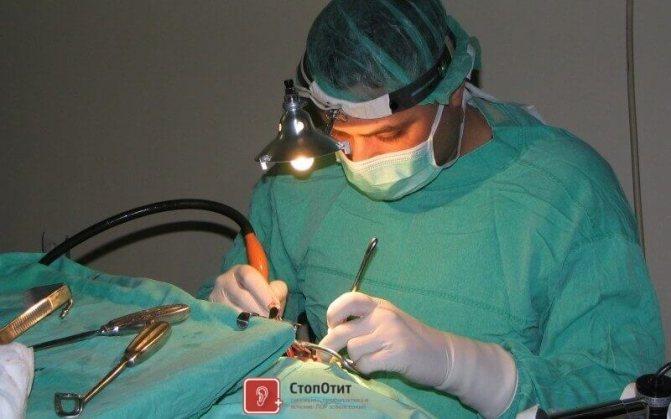 операція на вухо