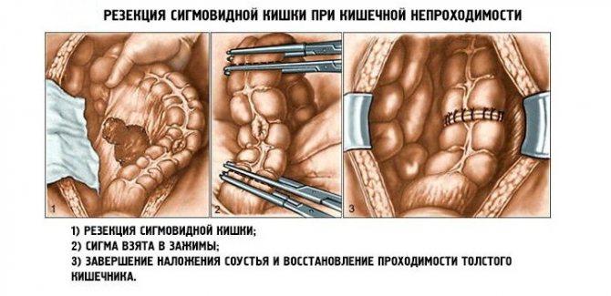 операція