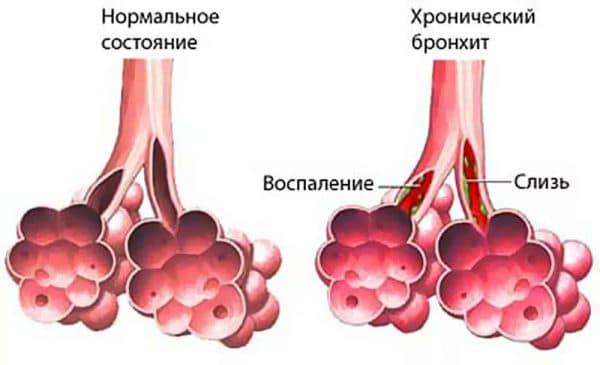 Визначення хронічного бронхіту