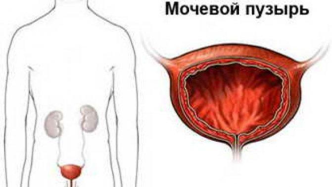 пухлина сечового міхура у чоловіків