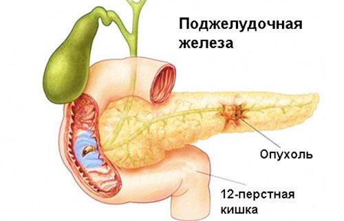 пухлина підшлункової в результаті ускладнень при панкреатиті