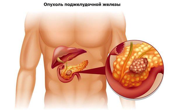 пухлина підшлункової залози як причина пупкової болю