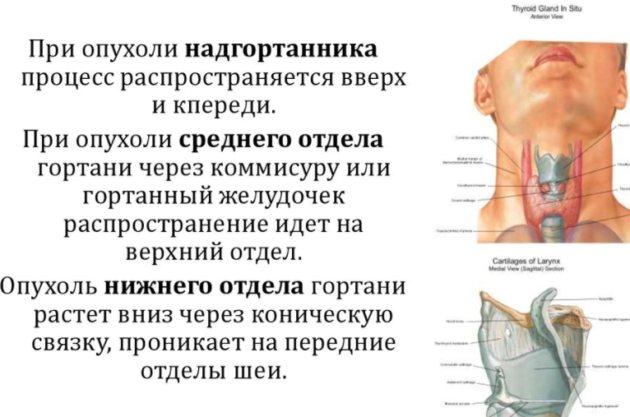 Пухлини верхнього відділу гортані