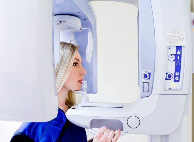 ортопантомографія