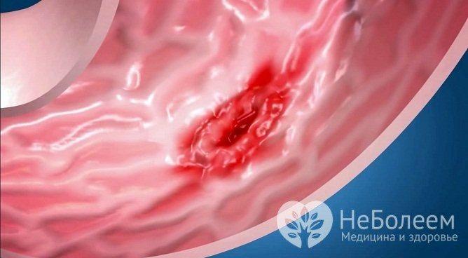 Ускладненням підвищеної кислотності шлунка може стати виразка стравоходу