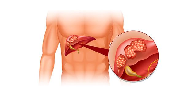 Ускладнення после гепатиту