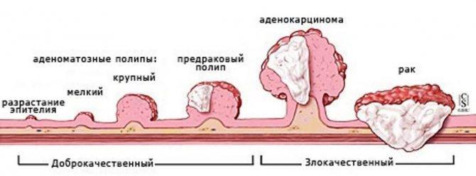 ускладнення при поліпах в кишечнику