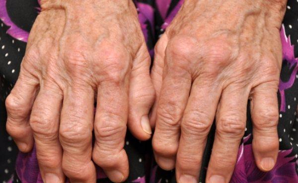 ускладнення псоріатичного артриту