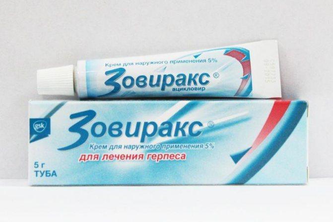 Основна діюча речовина в складі Зовиракса - ацикловір