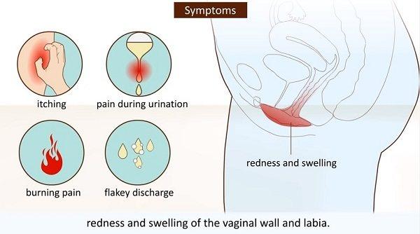 Основні Симптоми кандидозу
