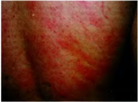 Основні Симптоми кропівніці у дорослих - фото, опис підвідів можливий алергічніх реакцій