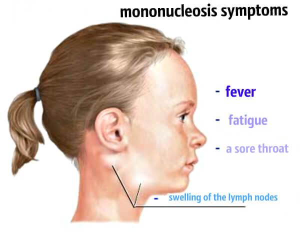 Основні симптоми мононуклеозу