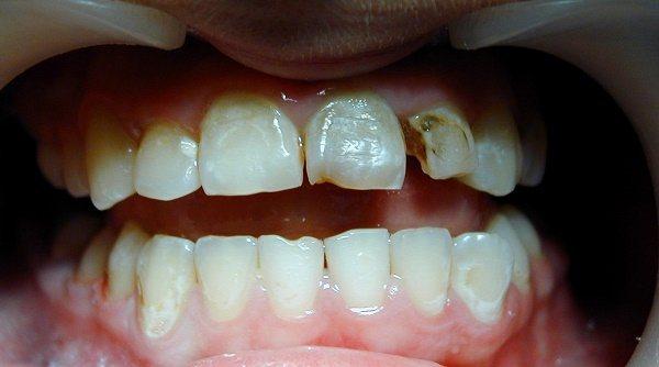 особливості лікування пульпіту молочних зубів