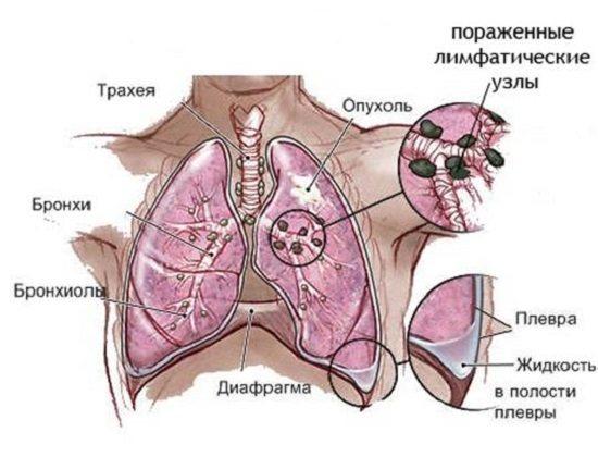 Особливості ураження легень
