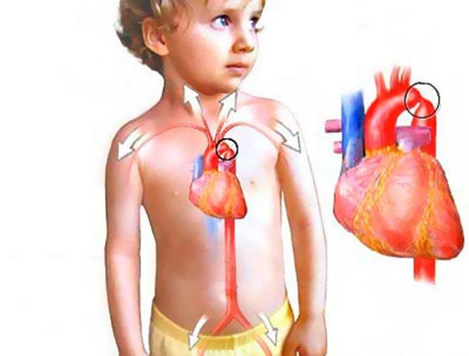 Особливості захворювання в дитячому віці