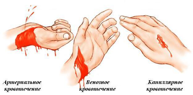 зупинка артеріальної кровотечі
