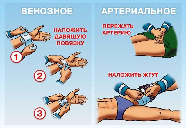 зупинка венозної кровотечі