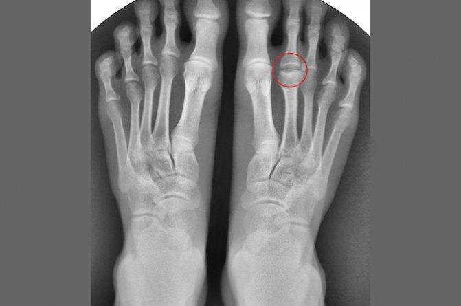 Остеохондропатия човноподібної кістки стопи: лікування
