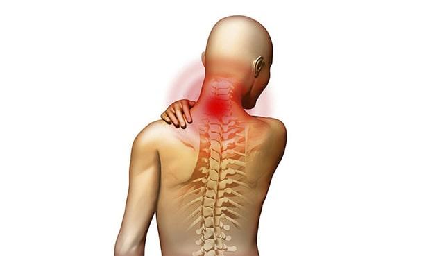 Остеохондроз шийного відділу