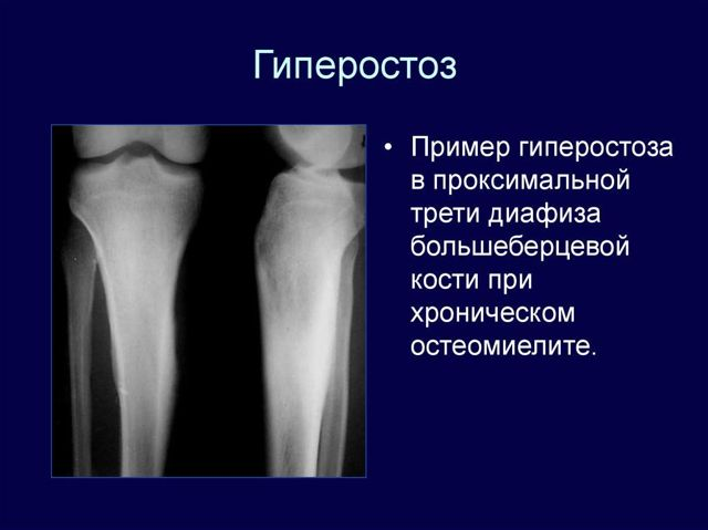 Остеома кістки: діагностика, лікування, види і фото