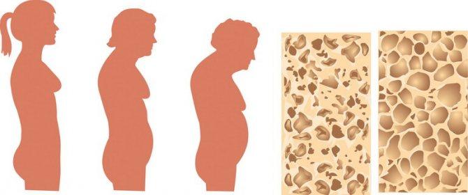 Остеомаляція і остеопороз